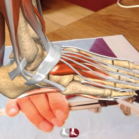 AR Ipad app enthesitis
