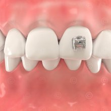 Brackets Orthodontics