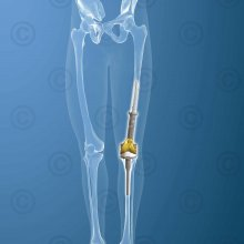 orthopedic implants