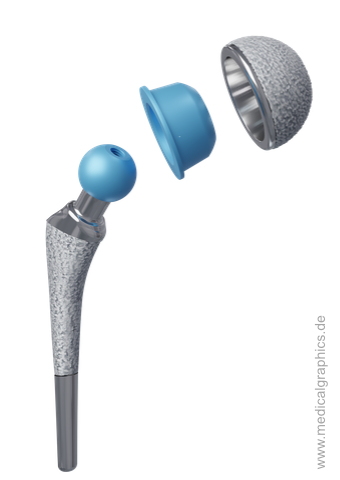 Total hip joint endoprosthesis - construction