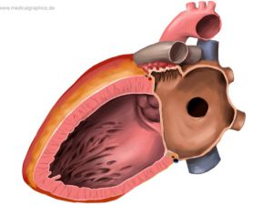 Atrial septal defect