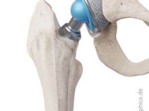 Hip prosthesis - front