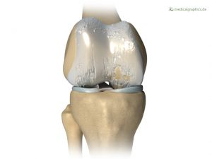 osteoarthritis knee (regenerated)