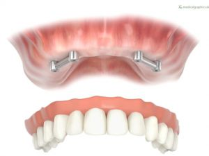 Bar retained full prosthesis upper jaw
