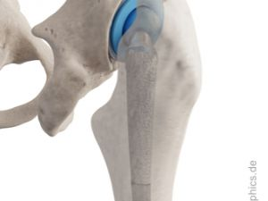 Total hip replacement - lateral-back