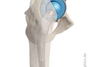 Total hip replacement - lateral