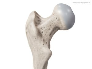 Femoral head and neck - back
