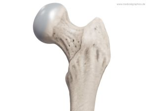 Femoral head and neck - front