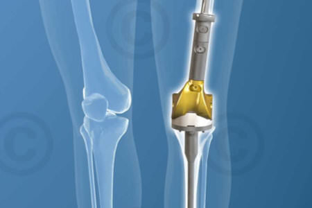 Distale-femur-implant-Tibia