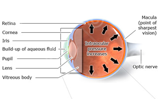 Eye pressure - glaucoma