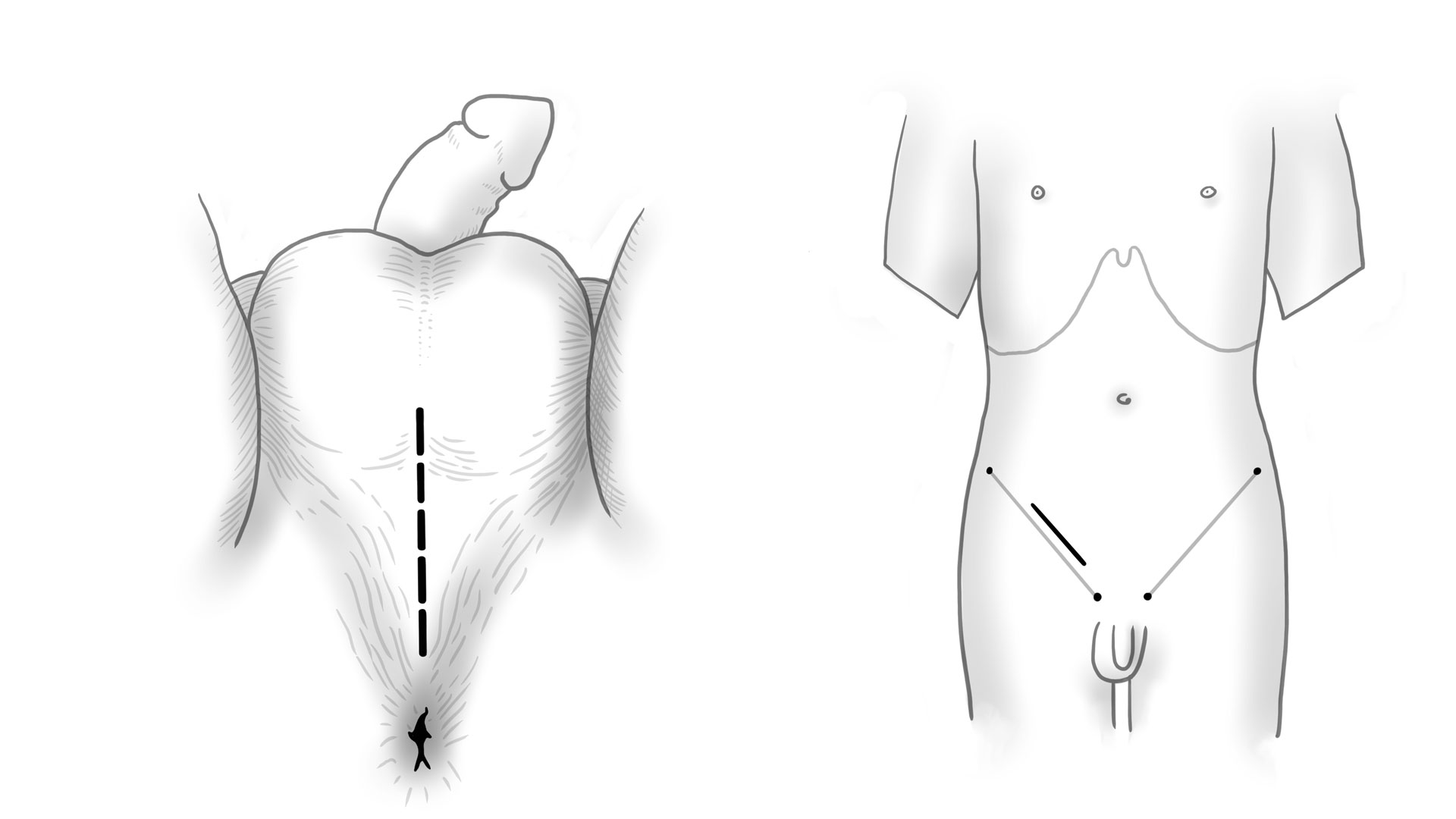 Sections Testicular surgery