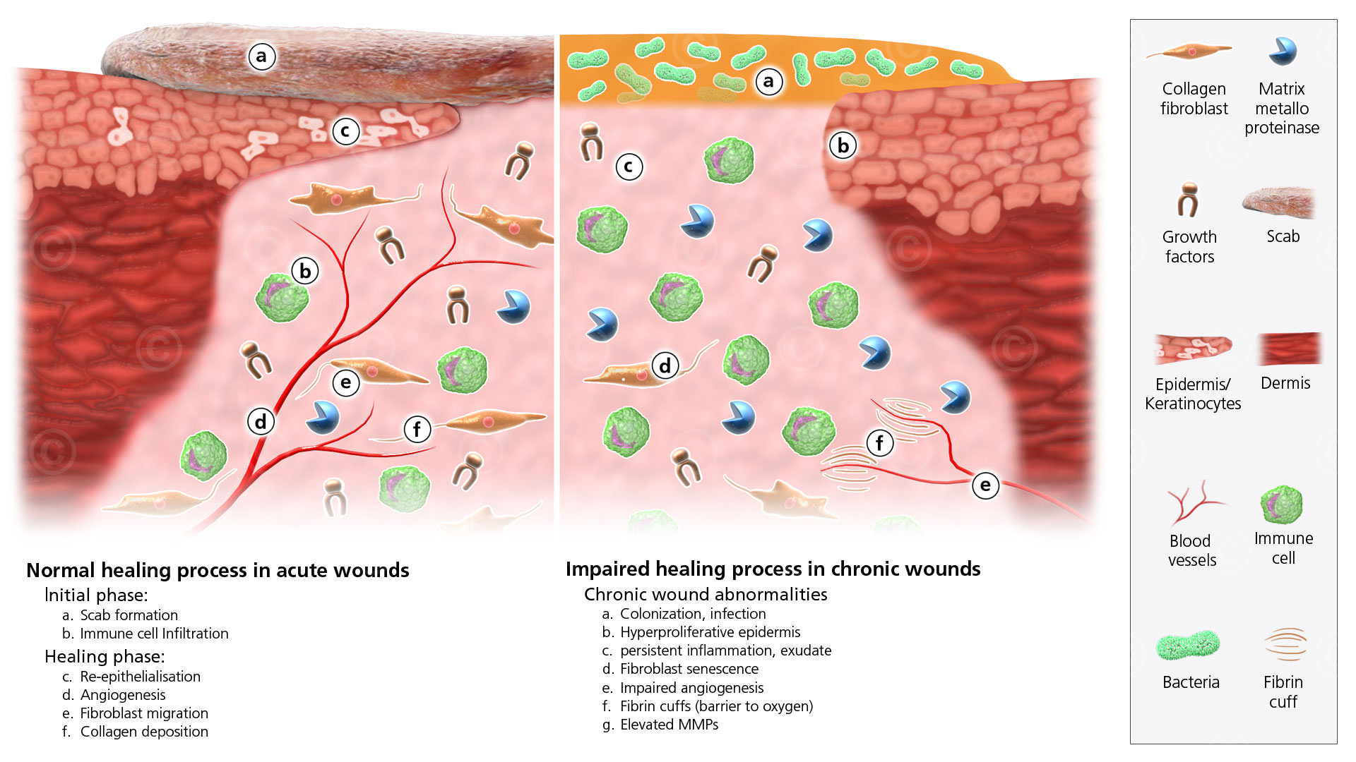 Comparison chronic and acute wound