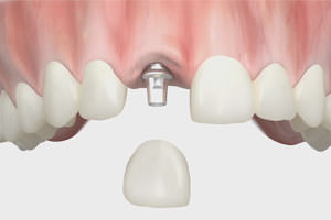 Dentures and implantology