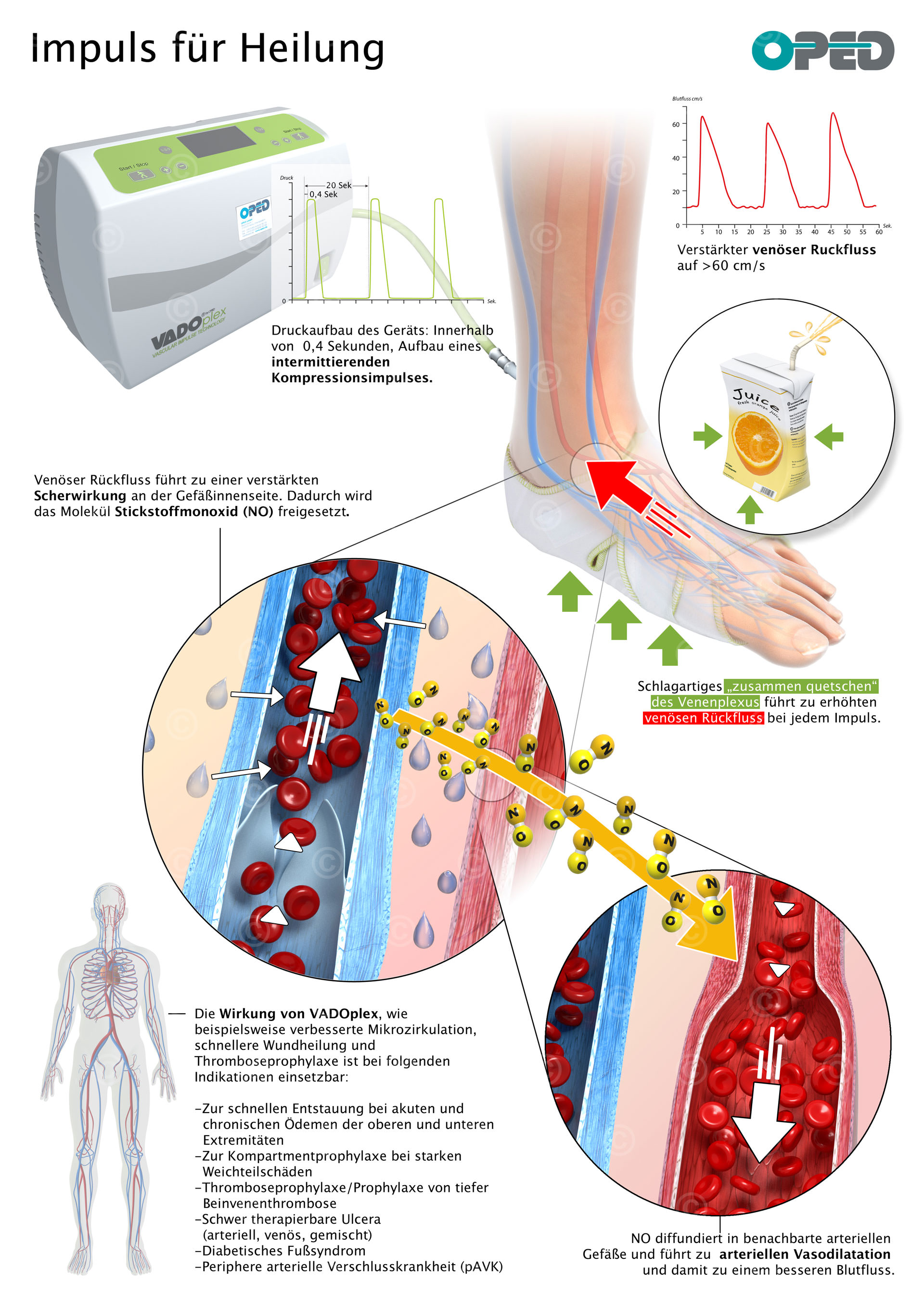 Infographic compression therapy