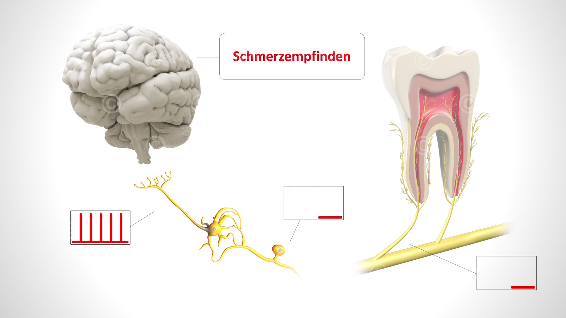 Neuropathic toothache