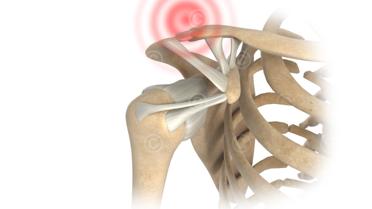 Shoulder joint injuries Tossy I