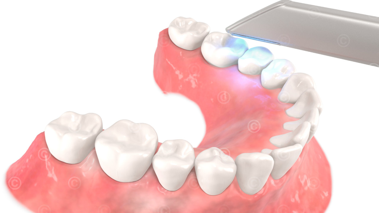 3d scan dental unterkiefer