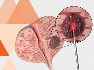 Transperineal treatment by laser prostate carcinoma