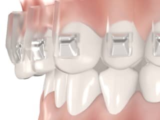 Tooth correction brackets