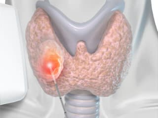 Treatment thyroid noduleswith laser fiber