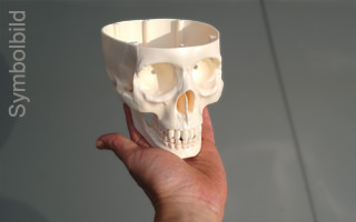 3D printing occlusion of the pulmonary artery